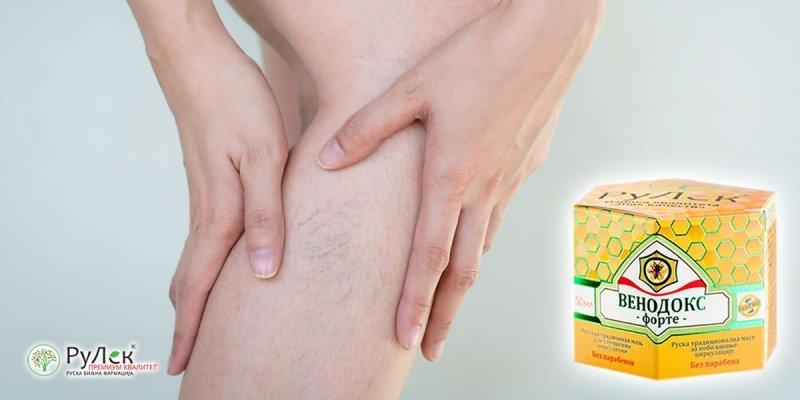 Kako lečiti bolne vene na nogama